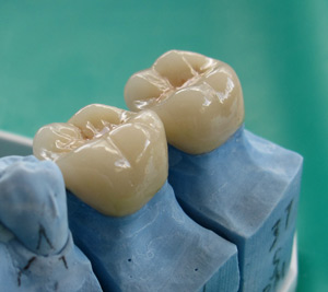 Glen Innes Dentist Crowns