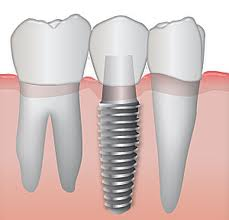 Glen Innes Dentist Implant